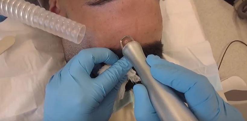 mole removal laser 2